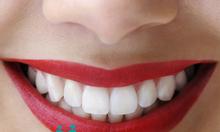 Trồng răng sứ thẩm mỹ hà nội Nha Khoa Việt Pháp