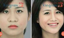 Hiện nay phẫu thuật nâng mũi có ảnh hưởng gì không