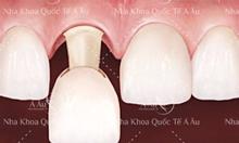 Bọc răng sứ thẩm mỹ công nghệ IVS Digital