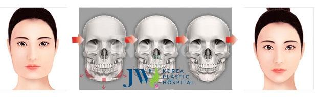Gọt mặt V Line giá bao nhiêu tại bệnh viện JW