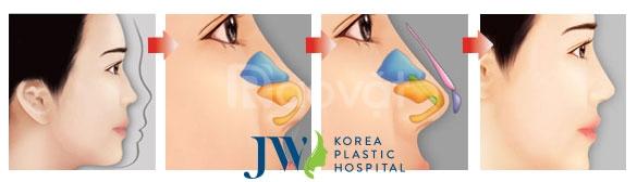 Nâng mũi cấu trúc tại Bệnh Viện JW