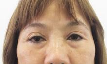 Cắt mắt 2 mí Hàn Quốc tại Bệnh Viện JW