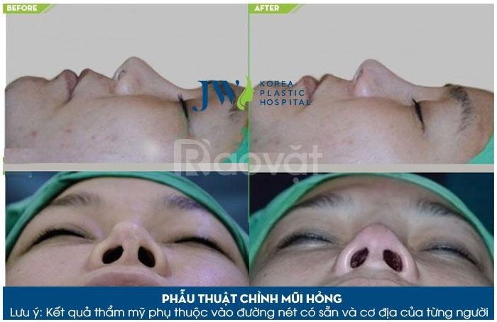 Sửa mũi lệch tại bệnh viện JW uy tín