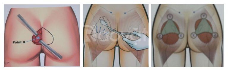 Nâng mông nội soi tại bệnh viện JW uy tín