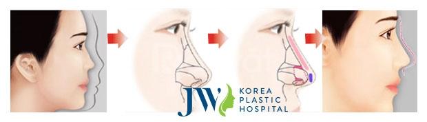 Nâng Mũi Bọc Sụn Tại Bệnh Viện JW - 5 Sao