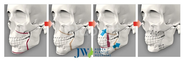 Phẫu thuật hàm hô tại Bệnh Viện JW uy tín