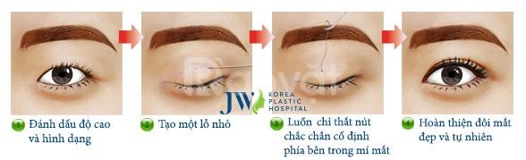 Nhấn mí Hàn Quốc tại JW - mắt đẹp tinh anh
