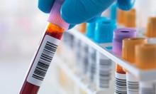 Có bằng y sỹ muốn học thêm bằng điều dưỡng tại TpHCM