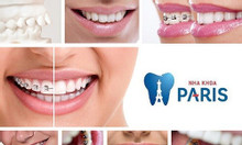 Niềng răng mắc cài mặt lưỡi và những điều bạn nên biết