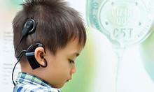 Điện cực ốc tai Cochlear