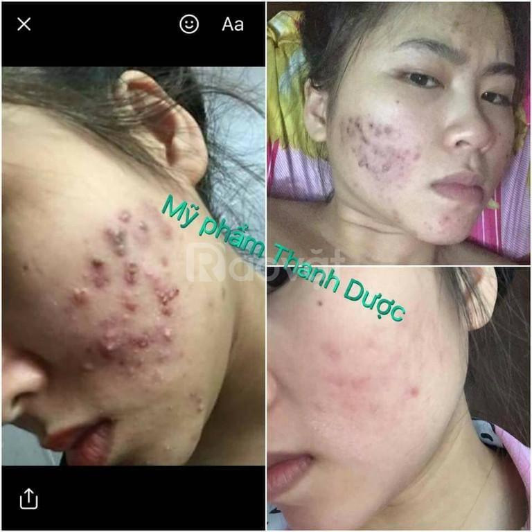 Thảo dược đông y trị mụn Thanh Dược (ảnh 4)