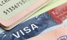 Dịch vụ gia hạn visa Mỹ, xin visa đi Mỹ không phỏng vấn