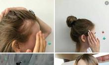 Giải pháp giúp các mẹ trị rụng tóc và mọc thêm tóc