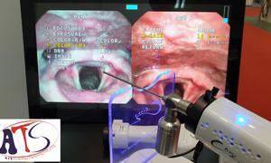 Hệ thống nội soi tai mũi họng không dây