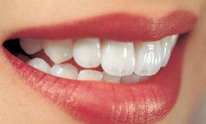 Nha khoa uy tín trồng răng sứ tại Tp HCM