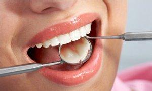 Dịch vụ trám răng thẩm mỹ tại TPHCM